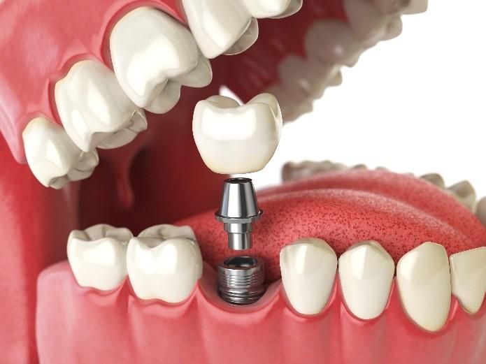 Dental implants at Dental Health Associates of Swanton