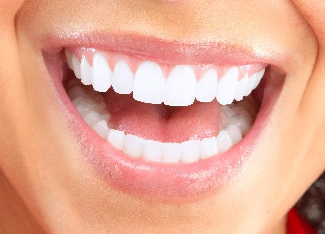 Smile makeover patient in Swanton, Oh at Dental Health Associates