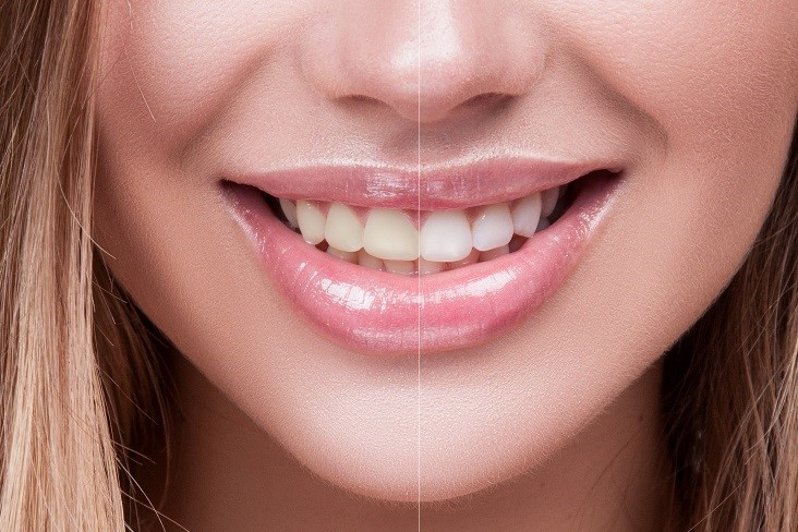 Before & after results of teeth whitening at Dental Health Associates in Swanton, OH